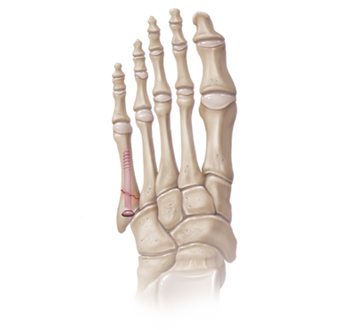 Jones fracture repair 0 large