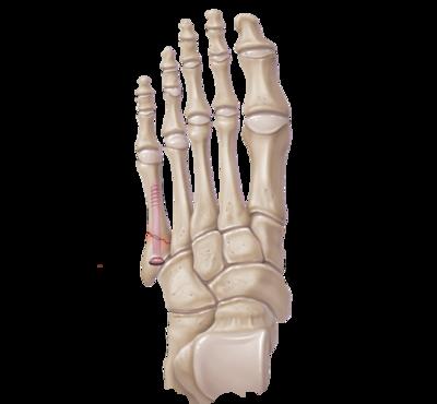 Jones Fracture Repair