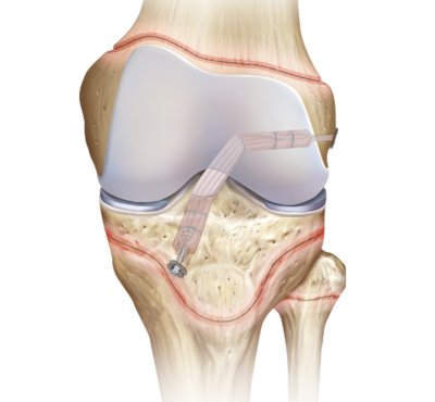 Knee acl pediatric reconstruction 0 large
