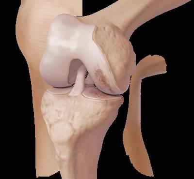 Knee arthritis 0 large