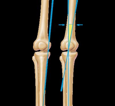 Knee limb alignment correction 0 large