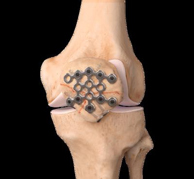 Knee patella fracture 0 large