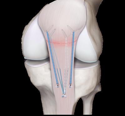 Knee tendon repair 1 large