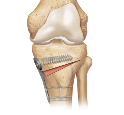 Tibial Opening Wedge
