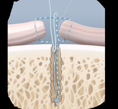 Knotless suturetak open repair technique 0 large