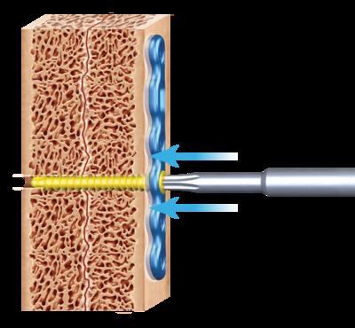 Kreulock locking compression screws 1 large
