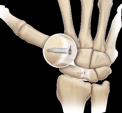 Ligament to bone fixation 0 large