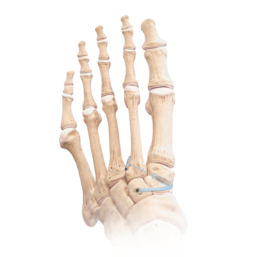 Lisfranc fracture repair 1 large