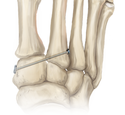 Lisfranc fracture repair 2 large
