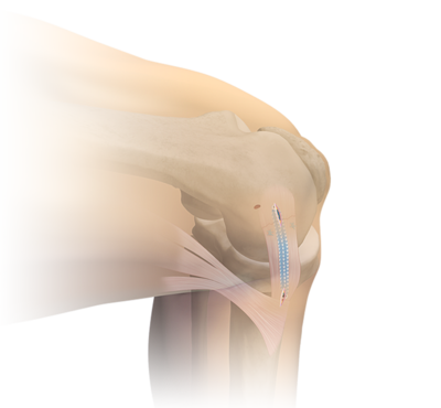 Medial collateral ligament internalbrace 0 large