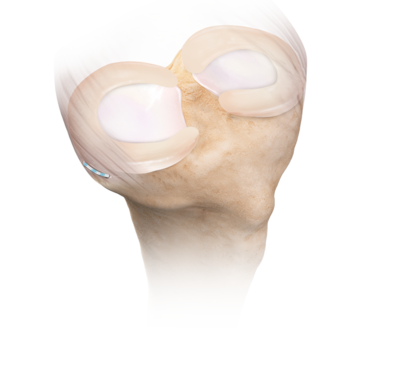 Meniscus extrusion 0 large
