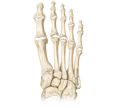 Metatarsal fracture repair 0 large
