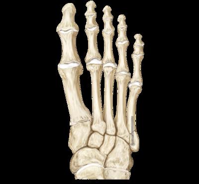 Metatarsal Fracture Repair