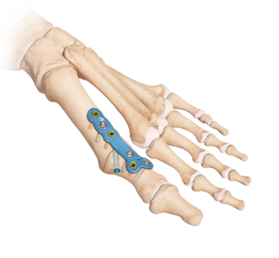 MTP Joint Arthrodesis