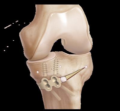 Osteotomy implants 0 large