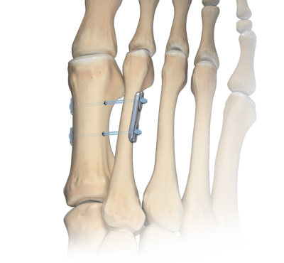 Osteotomy sparing technique 0 large
