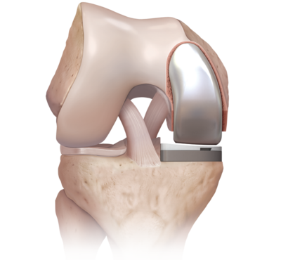 Partial knee replacement 0 large