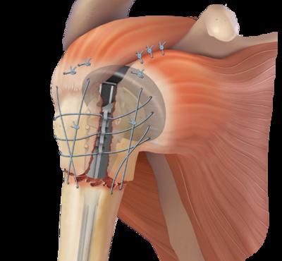 Proximal humeral fracture repair 2 large