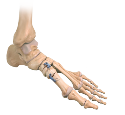 Proximal metatarsal osteotomy 0 large