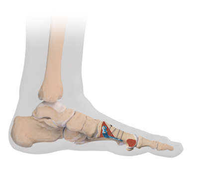 Proximal metatarsal osteotomy 2 large