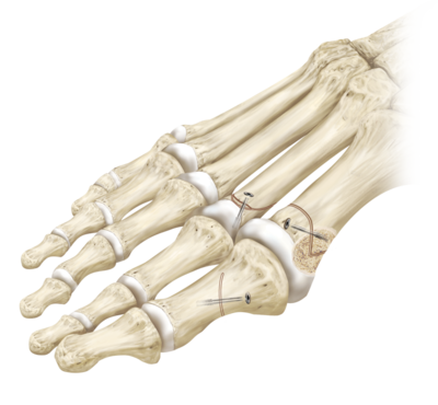 Proximal metatarsal osteotomy using screws 0 large