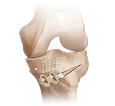 Proximal tibial osteotomy 0 large