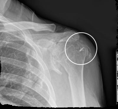Shoulder rotator cuff arthropathy 1 large