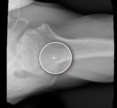 Shoulder rotator cuff arthropathy 2 large
