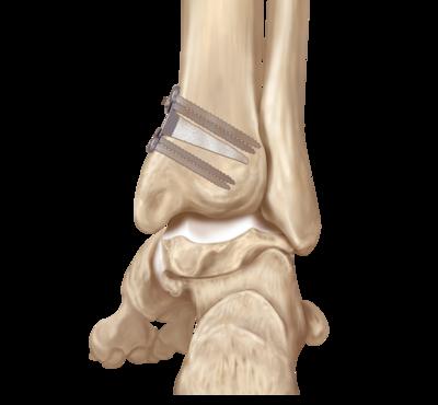 Tibia angular deformity 0 large