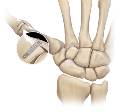 Two 5 mm pushlock thumb collateral ligament reconstruction 0 large
