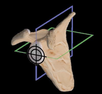 Virtual implant positioning 0 large